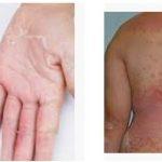 Диета для лечения псориаза
